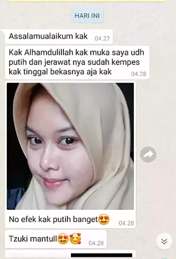 Sabun Tzuki Original BPOM Pemutih Wajah Badan Herbal ...